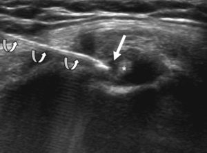 ultrasound-injection-real-image
